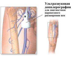 УЗИ сосудов в НейроМедика
